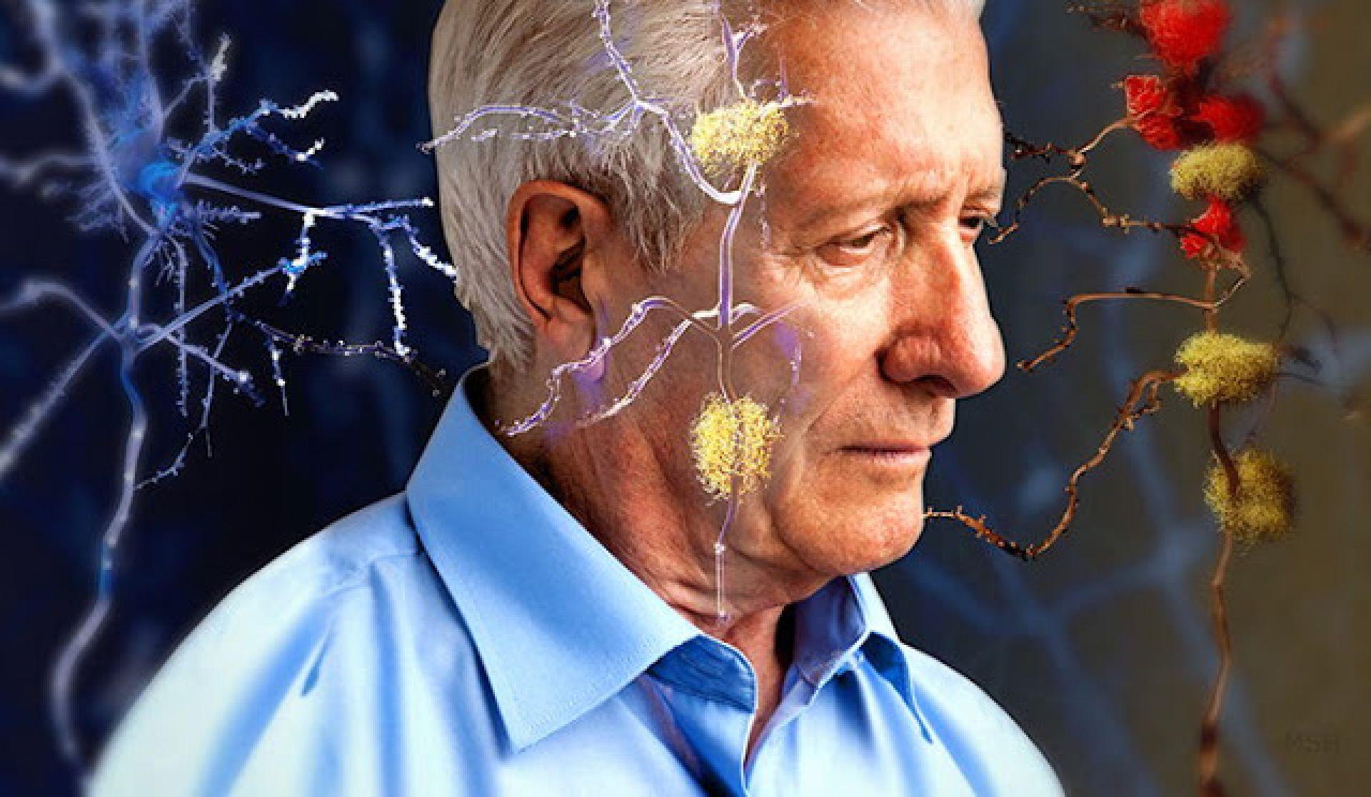 brein alzheimer